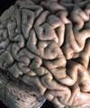 Tomografia Cerebral