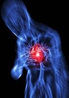 Definição infarto do coração