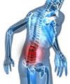 Estudo diz que paracetamol não é eficaz na dor lombar aguda