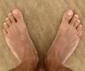 Remédio contra os calos dos pés uso