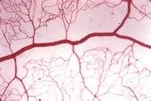 AVC Tratamento das complicações (neurológicas ou físicas)