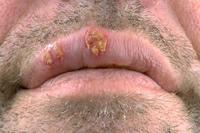 Herpes labial resumo