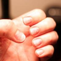brittle-nails-200x200