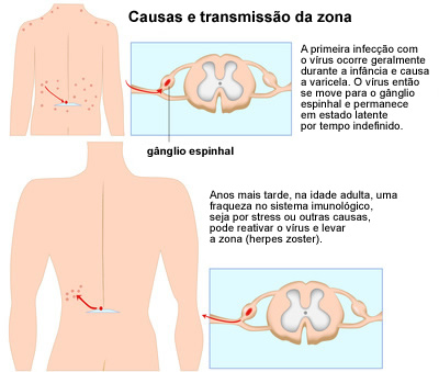 Causas herpes zóster