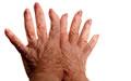 Lúpus sintomas