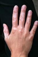 Vitiligo definicao