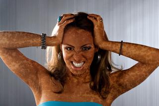 Vitiligo sintomas